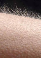 What Causes Goose Bumps?